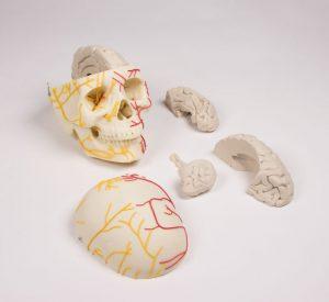 Neurovasculärer Schädel mit Gehirn