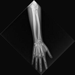 Röntgenphantom Unterarm, opak