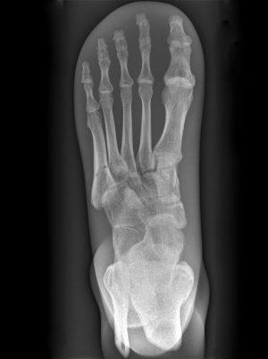 Röntgenphantom Fuß, transparent