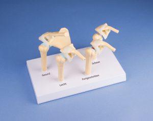 4-Stadien-Osteoarthritis (OA) Schulter