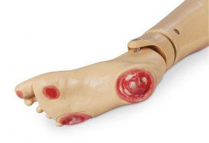 Druckgeschwür-Fuß für GERi und KERi